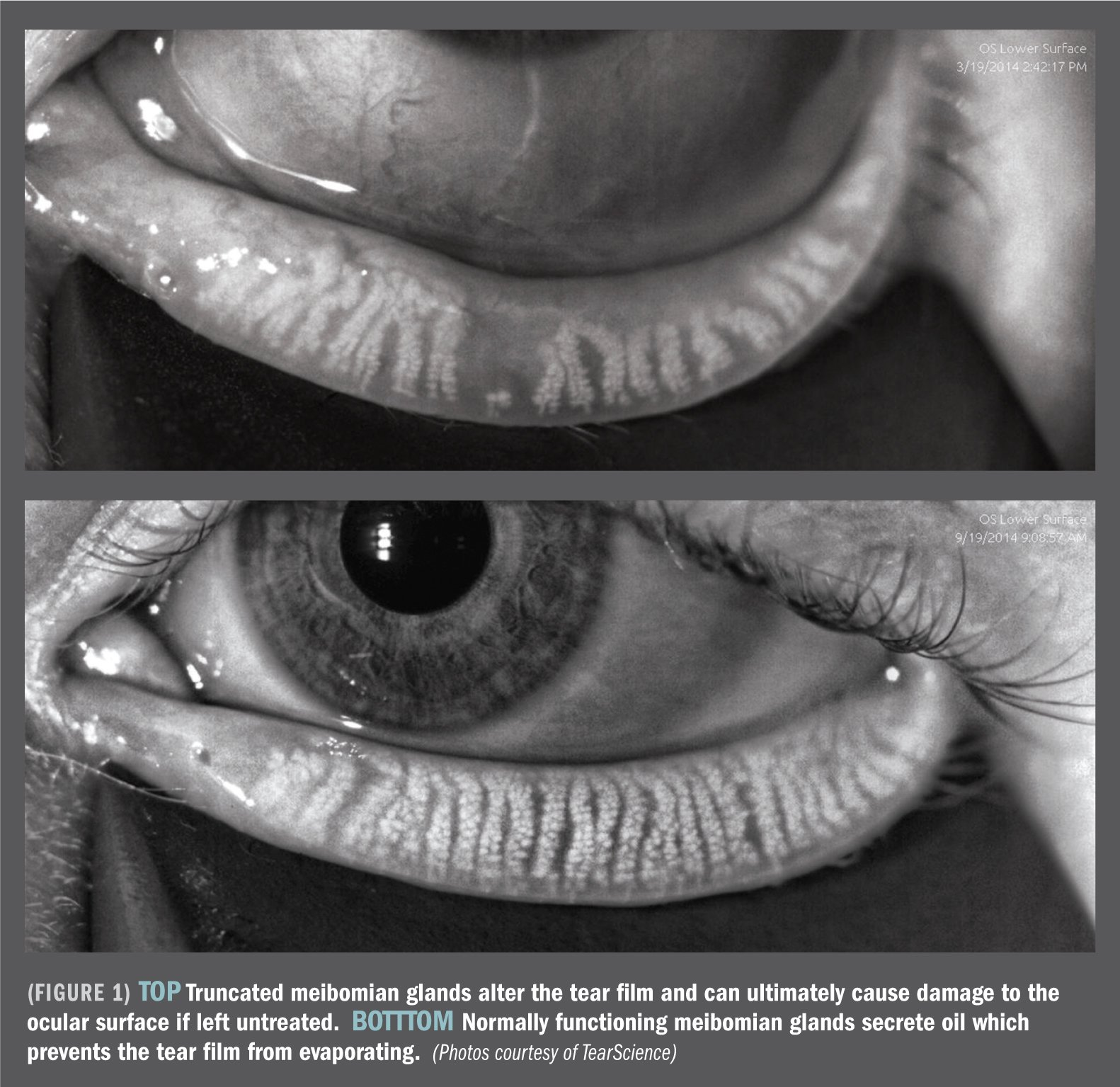 Dry Eyes Grace Vision Optometrist Brisbane