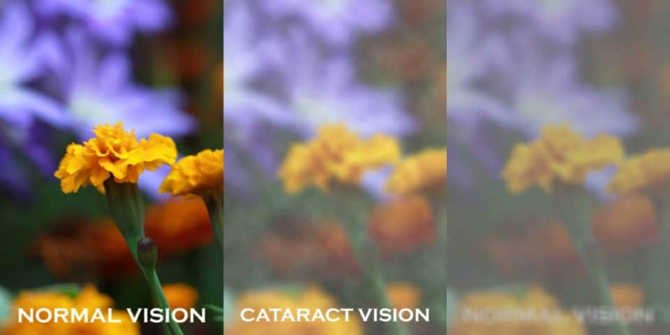 Cataracts: What to expect & how to slow it down