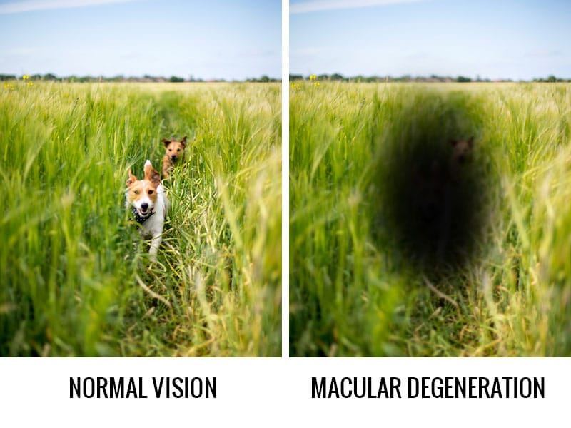Changes in your eyes after age 40: Macular Degeneration